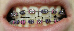 correct age for dental braces or orthodontic treatment